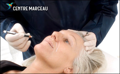 Centre Marceau - Injections d'acide hyaluronique