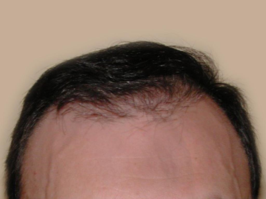 Figure 4 : Vue face - Après MICRO FUE de 3000 Greffons Photo Dr Boolauck Paris