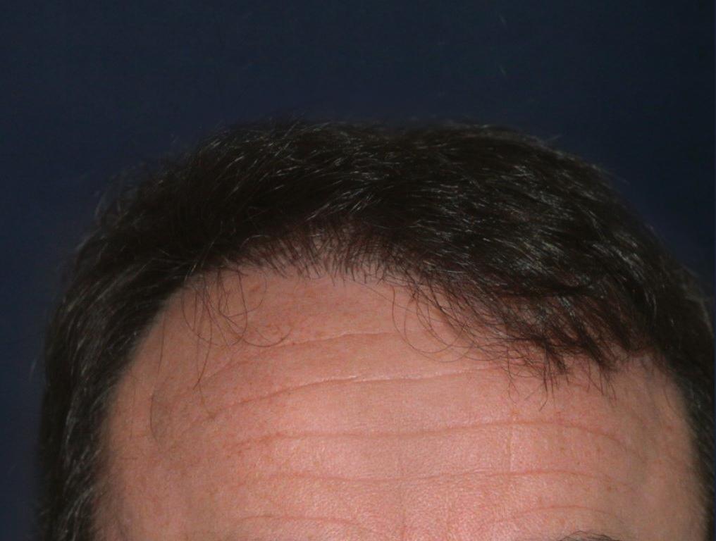 Figure 6 : Après MICRO FUE Photo Dr Boolauck Paris