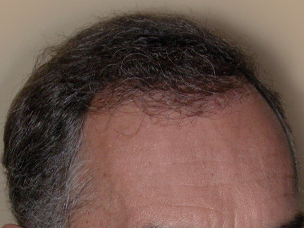 Figure 8 : Après MICRO FUE de 1500 Greffons de 1 à 2 cheveux Photo Dr Boolauck Paris
