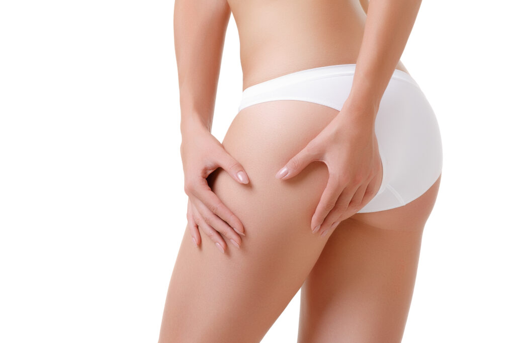 Checking cellulite woman hip close up